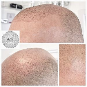 Scar, Scalp, Panda treatment