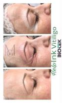 vitiligo szem (2)