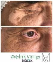 vitiligo szem körül