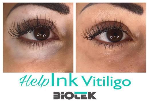 vitiligo szem