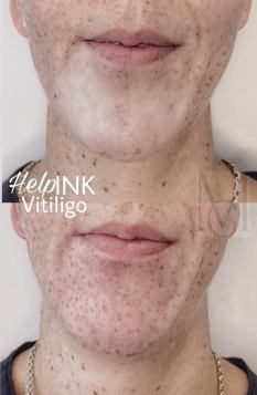 vitiligo szeplővel
